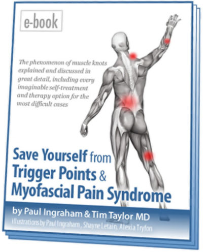 The Complete Guide to Trigger Points & Myofascial Pain (2019)