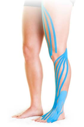6fbe251d6243c Kinesio Taping Review