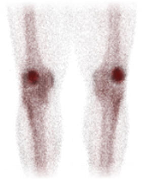 A bone scan of patellefemoral pain, showing the faint grainy shapes of thigh and shin bones, even fainter outlines of soft tissue, and very dark kneecaps standing out boldly.