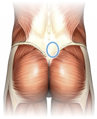 Anatomy of the lower back, superficial dissection, with a blue circle in the low right back, highlighting the recommended location for massage (described in detail below).
