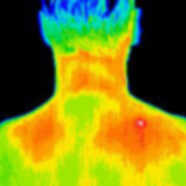 Small thermograph of a trigger point hot spot on the back of a man's shoulder.